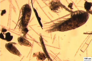 zoplancton